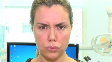 Renata Banhara detalha infecção cerebral e mostra o rosto paralisado