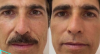 Reynaldo Gianecchini faz procedimento no rosto
