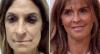Harmonização facial: veja o antes e depois do procedimento