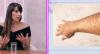 Doenças de pele: saiba o tratamento mais indicado para cada uma delas