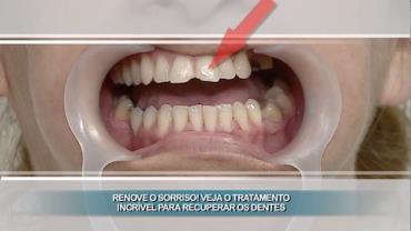 Dentista deixa Karina com o sorriso novo em folha
