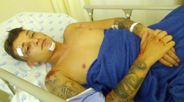 MC Gui sofre acidente de moto em Bertioga, São Paulo