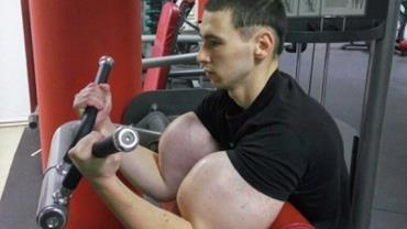 Fisiculturista corre risco de perder os braços após injetar anabolizante caseiro