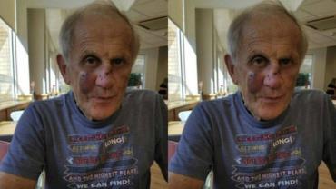 Homem de 75 anos é derrubado de bicicleta e atacado por pastor-alemão