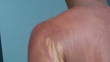 Turista de MG que teve manchas no corpo após banho de mar na Bahia é internado