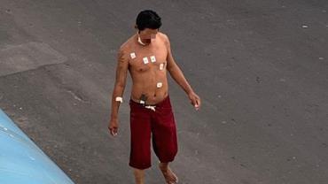 Homem com coronavírus foge de hospital e pega mototaxi no Amazonas