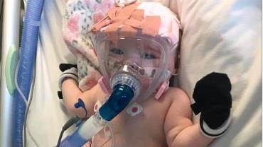 Após sobreviver à cirurgia cardíaca, bebê de seis meses é diagnosticado com coronavírus
