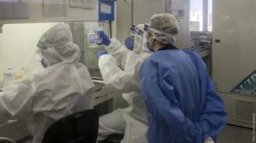 Remédio anticoagulante reduz em 70% a infecção de células pelo novo coronavírus, diz estudo