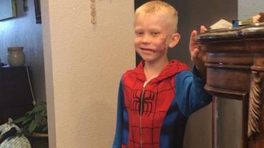 Menino de 6 anos leva 90 pontos após salvar irmã mais nova de ataque de cachorro no EUA
