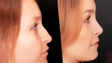 """Carla Diaz mostra antes e depois de rinoplastia: """"Estou chocada"""""""