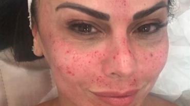 """Viviane Araújo mostra rosto com sangue durante tratamento estético e brinca: """"Não se assustem"""""""