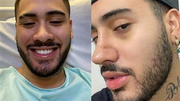 """Kevinho mostra antes e depois após passar por cirurgia no nariz: """"Não sabia o que era respirar"""""""