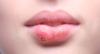 Ferida na boca nem sempre é herpes; veja outras causas possíveis