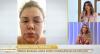 Infecção cerebral quase matou Renata Banhara