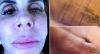 Gretchen exibe resultados de novas cirurgias plásticas