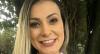 Andressa Urach remove tatuagem com nome do filho e revela motivo