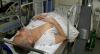 Paciente com diabetes passa transplante com células-tronco contra amputação