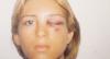 """Nadja Pessoa sobre relacionamento abusivo: """"Ele me bateu algumas vezes"""""""