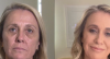Médica explica como é feita a cirurgia de harmonização facial