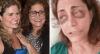 Mãe da namorada da cantora Joanna desabafa após ser agredida pela filha