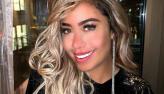 Rafaella Santos conta que fez cirurgia no nariz:
