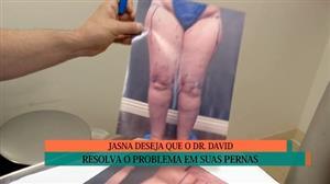 Jasna fica feliz com nova aparência das pernas após diagnóstico errado