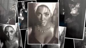 Anitta posa s� de suti� e revela que tem calo nas cordas vocais