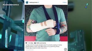 Acidente faz Ed Sheeran cancelar sete shows na Ásia