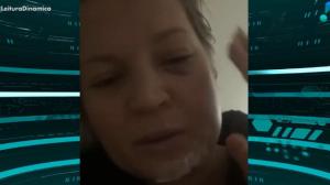 Joice Hasselmann divulga machucados e diz não se lembrar do ocorrido