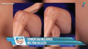 Celulite é o terror de 98% das mulheres