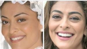Tecnologia é aliada nos tratamentos dentários adotados por famosos
