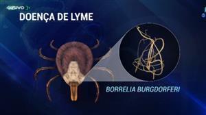 Rara no Brasil, Doença de Lyme pode causar alterações no cérebro