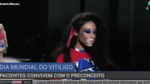 Pacientes procuram desmistificar e acabar com preconceito sobre o vitiligo