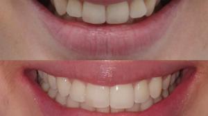 """Aparelhos """"invisíveis"""" garantem sorriso perfeito e discrição no tratamento"""