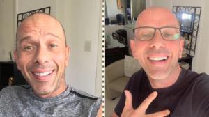 """Rafael Ilha após realizar harmonização facial: """"Fiquei muito feliz"""""""