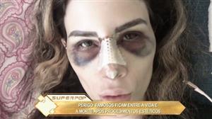 SuperPop faz alerta para os riscos da beleza a qualquer custo