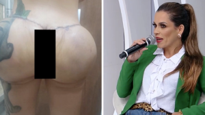 "Mulher teve bumbum deformado após cirurgia estética: ""Pesadelo"""