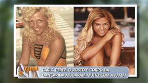 Antes e depois da fama: Confira as incríveis transformações dos famosos