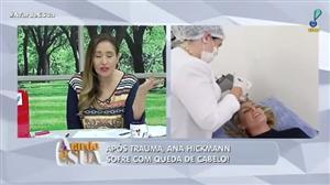 Ana Hickmann sofre com queda de cabelo; entenda o motivo