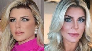 "Íris Stefanelli nega procedimentos no rosto após foto viralizar: ""É filtro"""