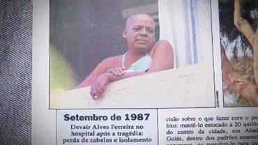 Vítimas carregam marcas do acidente há 30 anos