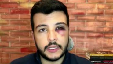 """Jornalista reage a assalto e sofre agressão: """"Me coloquei num risco maior"""""""